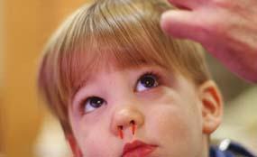 儿童健康 - 小朋友流鼻血,怎么办?