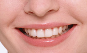 牙齒健康 - 牙齒保健